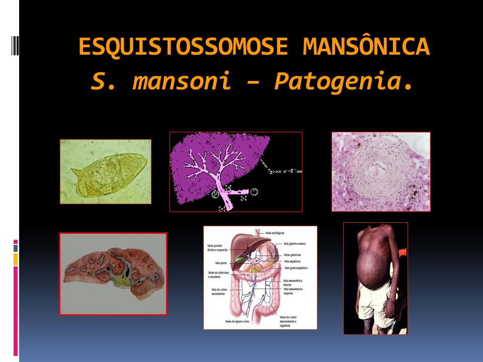 ESQUISTOSSOMOSE MANSÔNICA S. mansoni – Patogenia.