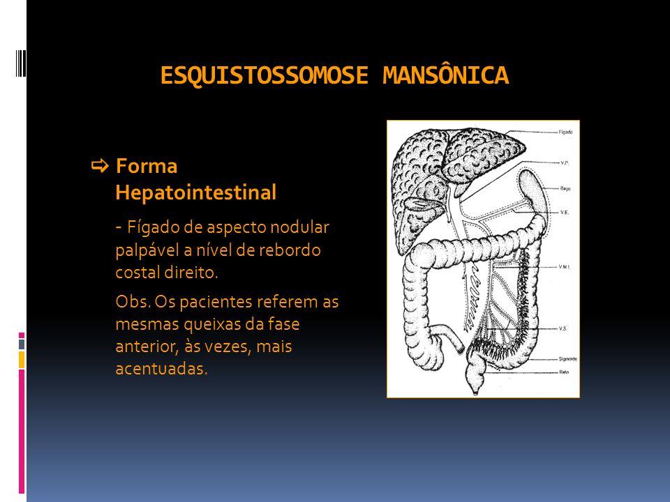ESQUISTOSSOMOSE MANSÔNICA Forma Hepatointestinal - Fígado de aspecto nodular palpável a nível de rebordo costal direito. Obs. Os pacientes referem as