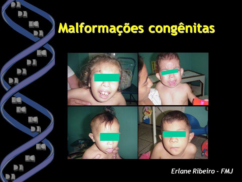 Malformações congênitas Erlane Ribeiro - FMJ