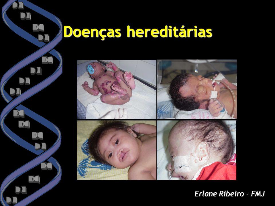 Doenças hereditárias Erlane Ribeiro - FMJ