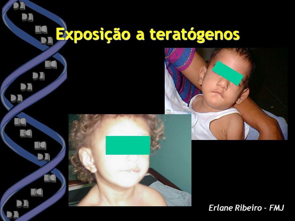 Exposição a teratógenos Erlane Ribeiro - FMJ