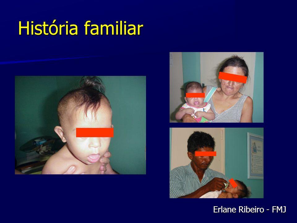 Anomalias Cromossômicas CONCEPÇÕES 10-15% (95% perdidos) Trissomias50% Monossomias20% Triploidia15% Anomalias estruturais 15% Ovócitos20-25% Espermatozóides3-4% Erlane Ribeiro - FMJ