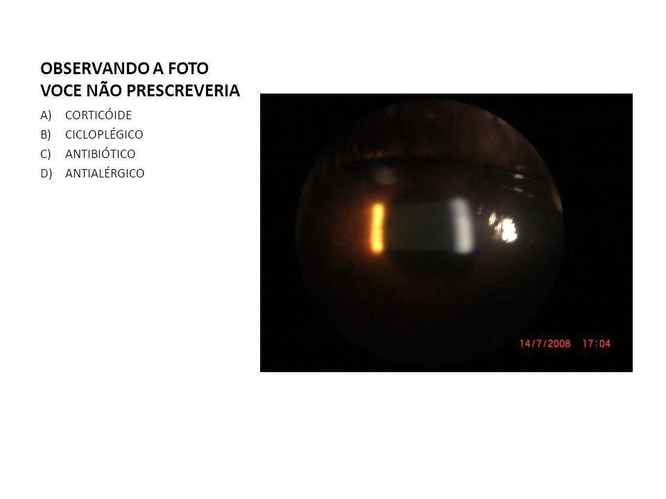 OBSERVANDO A FOTO VOCE NÃO PRESCREVERIA A)CORTICÓIDE B)CICLOPLÉGICO C)ANTIBIÓTICO D)ANTIALÉRGICO
