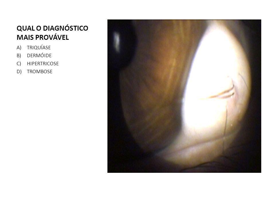 QUAL O DIAGNÓSTICO MAIS PROVÁVEL A)TRIQUÍASE B)DERMÓIDE C)HIPERTRICOSE D)TROMBOSE