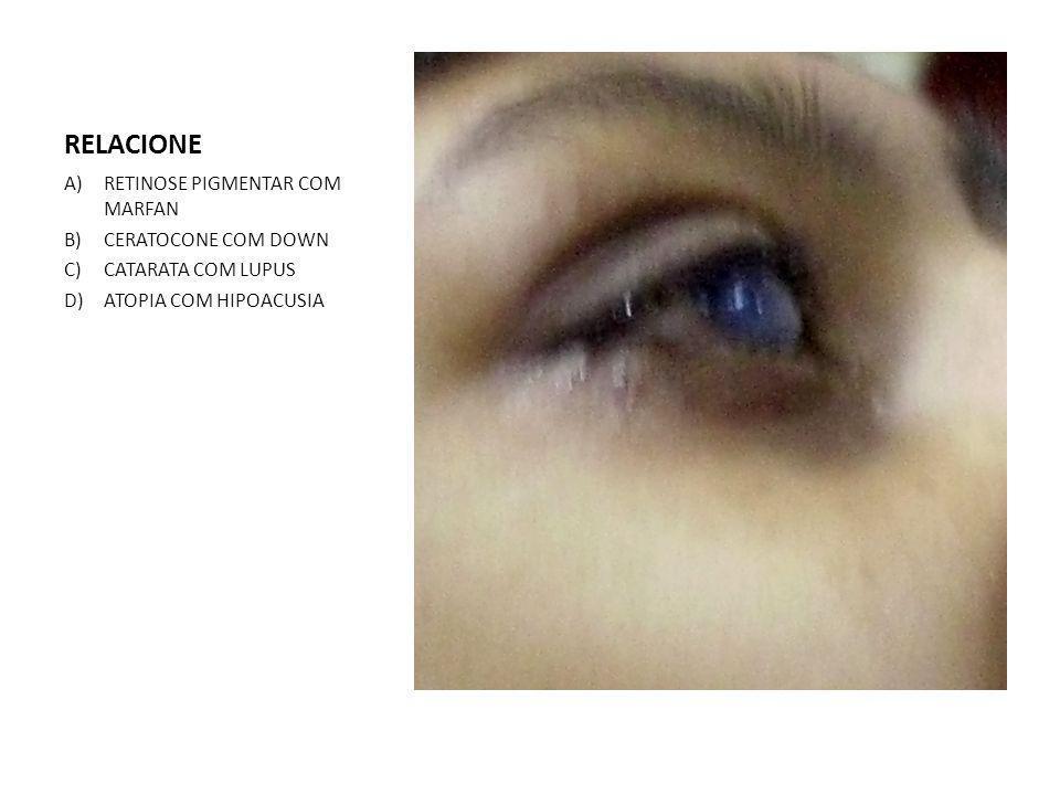 RELACIONE A)RETINOSE PIGMENTAR COM MARFAN B)CERATOCONE COM DOWN C)CATARATA COM LUPUS D)ATOPIA COM HIPOACUSIA