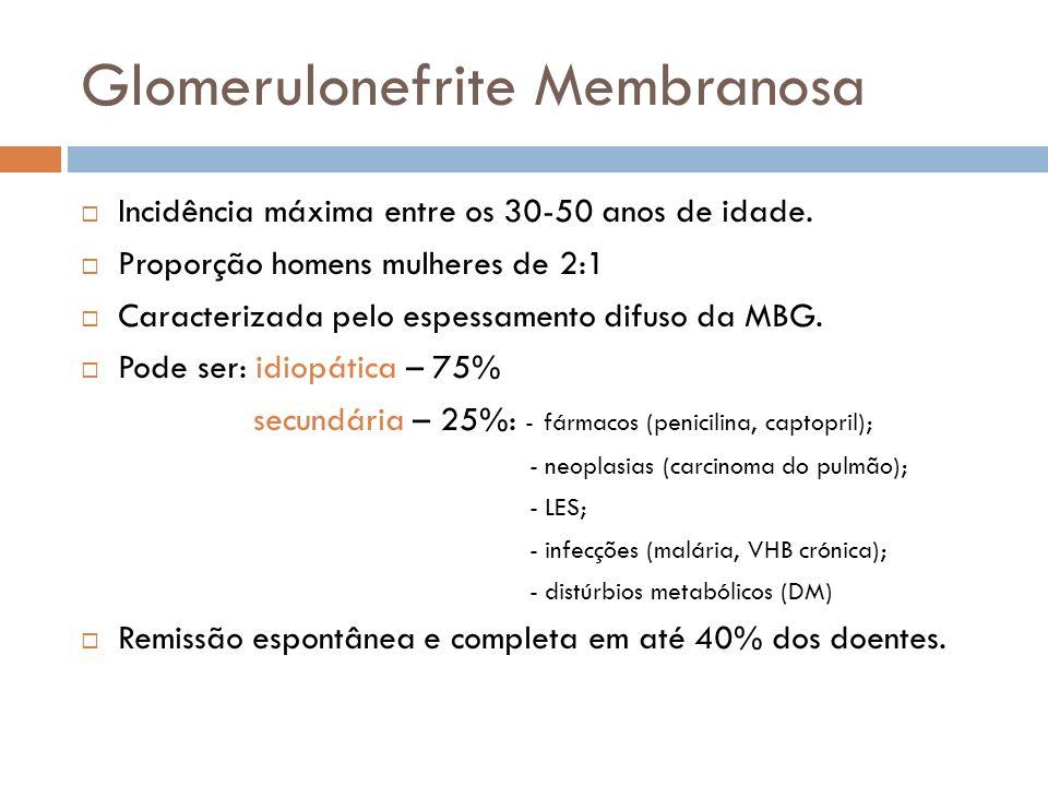 Glomerulonefrite Membranosa Incidência máxima entre os 30-50 anos de idade. Proporção homens mulheres de 2:1 Caracterizada pelo espessamento difuso da