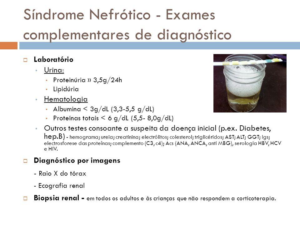 Síndrome Nefrótico - Exames complementares de diagnóstico Laboratório Urina: Proteinúria » 3,5g/24h Lipidúria Hematologia Albumina < 3g/dL (3,3-5,5 g/