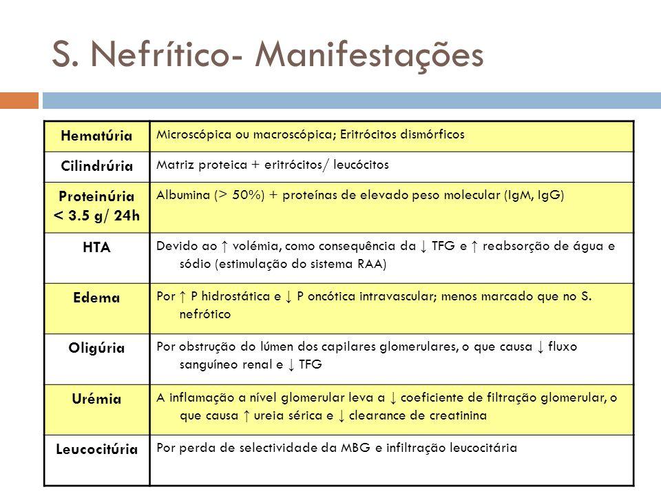 S. Nefrítico- Manifestações Hematúria Microscópica ou macroscópica; Eritrócitos dismórficos Cilindrúria Matriz proteica + eritrócitos/ leucócitos Prot