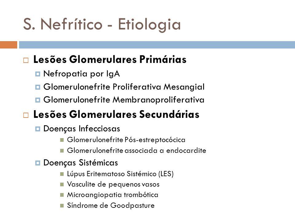 S. Nefrítico - Etiologia Lesões Glomerulares Primárias Nefropatia por IgA Glomerulonefrite Proliferativa Mesangial Glomerulonefrite Membranoproliferat