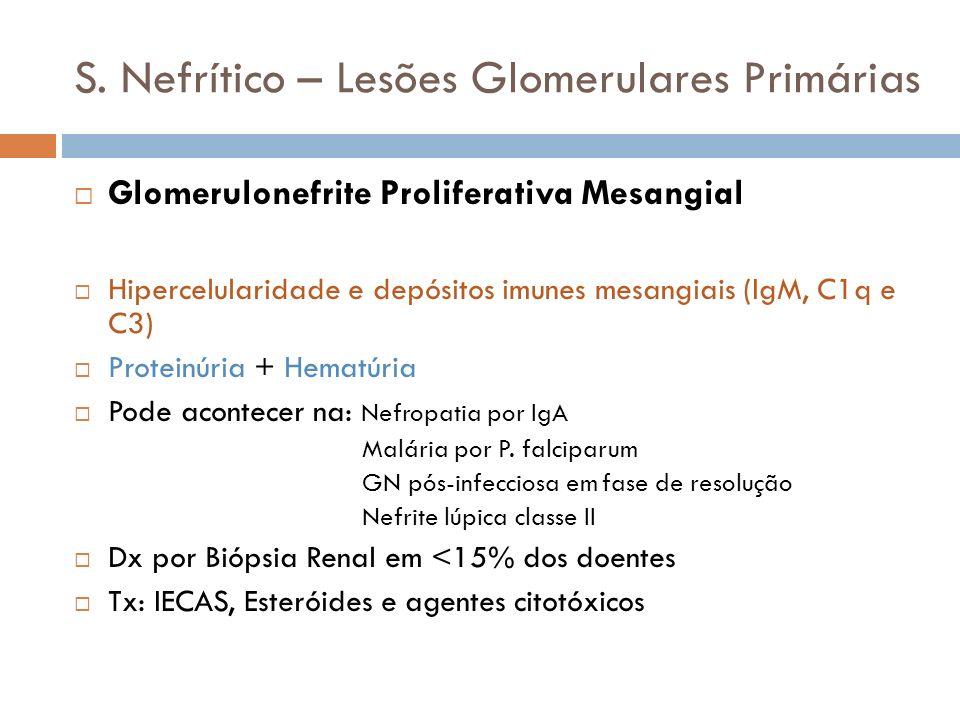 S. Nefrítico – Lesões Glomerulares Primárias Glomerulonefrite Proliferativa Mesangial Hipercelularidade e depósitos imunes mesangiais (IgM, C1q e C3)