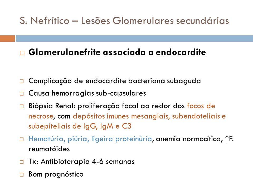 S. Nefrítico – Lesões Glomerulares secundárias Glomerulonefrite associada a endocardite Complicação de endocardite bacteriana subaguda Causa hemorragi