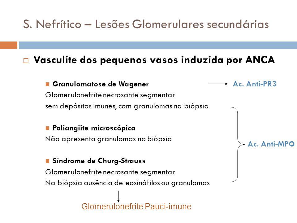 S. Nefrítico – Lesões Glomerulares secundárias Vasculite dos pequenos vasos induzida por ANCA Granulomatose de Wagener Ac. Anti-PR3 Glomerulonefrite n