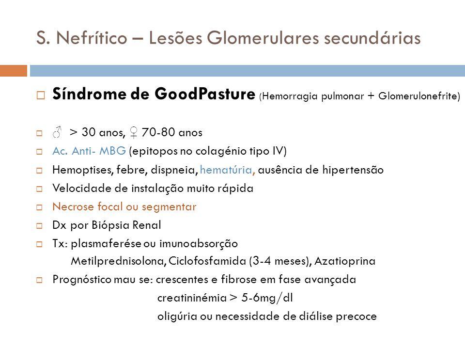 S. Nefrítico – Lesões Glomerulares secundárias Síndrome de GoodPasture ( Hemorragia pulmonar + Glomerulonefrite) > 30 anos, 70-80 anos Ac. Anti- MBG (