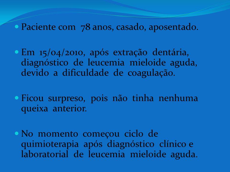 Paciente com 78 anos, casado, aposentado. Em 15/04/2010, após extração dentária, diagnóstico de leucemia mieloide aguda, devido a dificuldade de coagu