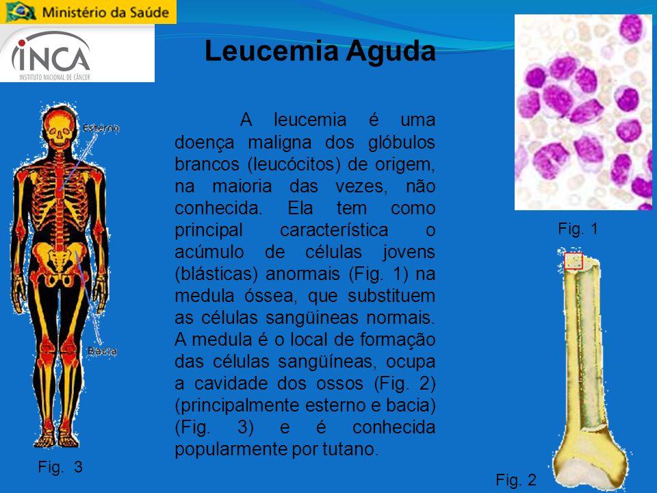 Leucemia Aguda A leucemia é uma doença maligna dos glóbulos brancos (leucócitos) de origem, na maioria das vezes, não conhecida. Ela tem como principa