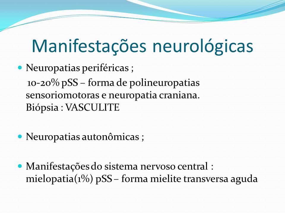 Manifestações neurológicas Neuropatias periféricas ; 10-20% pSS – forma de polineuropatias sensoriomotoras e neuropatia craniana. Biópsia : VASCULITE