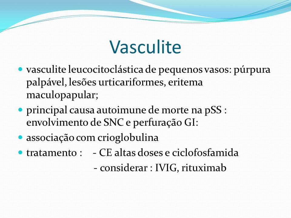 Vasculite vasculite leucocitoclástica de pequenos vasos: púrpura palpável, lesões urticariformes, eritema maculopapular; principal causa autoimune de