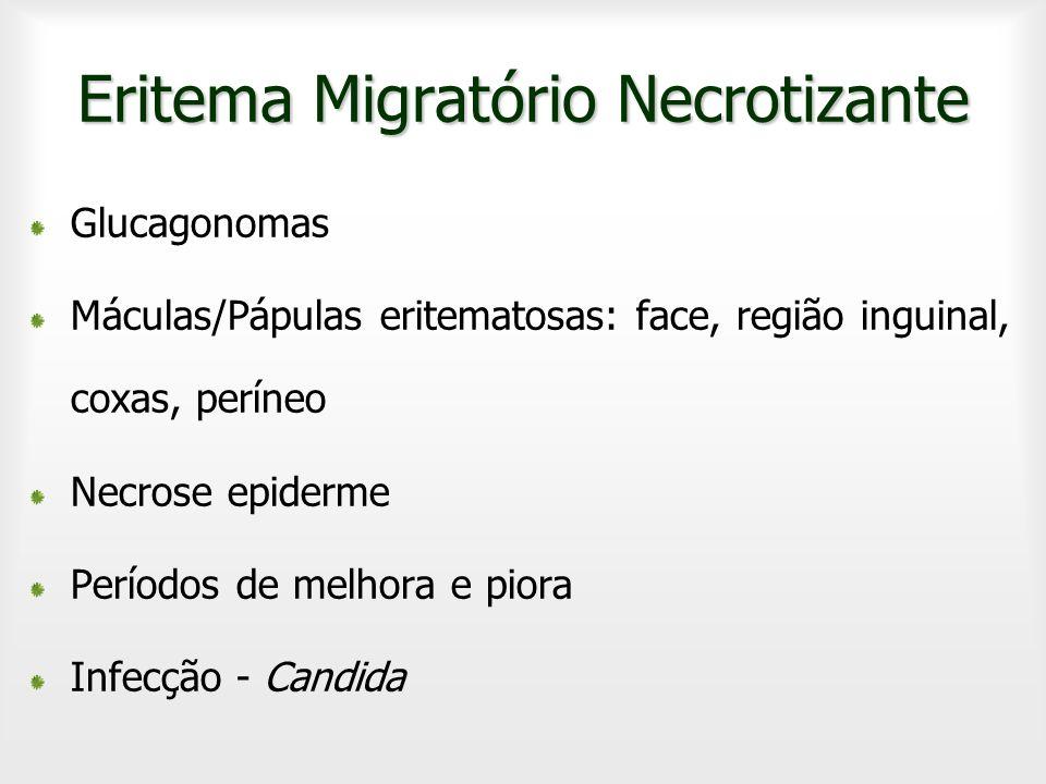 Eritema Migratório Necrotizante Glucagonomas Máculas/Pápulas eritematosas: face, região inguinal, coxas, períneo Necrose epiderme Períodos de melhora