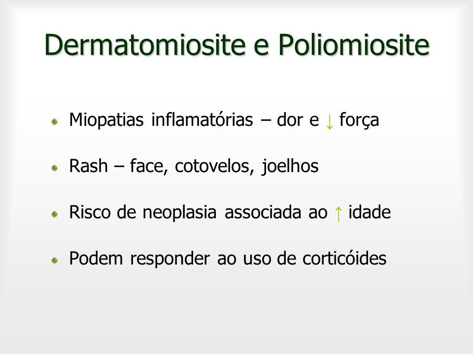 Dermatomiosite e Poliomiosite Miopatias inflamatórias – dor e força Rash – face, cotovelos, joelhos Risco de neoplasia associada ao idade Podem respon