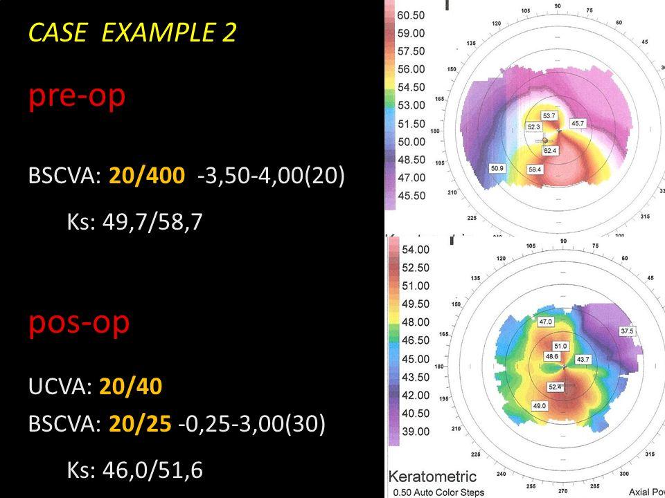 Novidades no olho seco CASE EXAMPLE 2 pre-op BSCVA: 20/400 -3,50-4,00(20) Ks: 49,7/58,7 pos-op UCVA: 20/40 BSCVA: 20/25 -0,25-3,00(30) Ks: 46,0/51,6