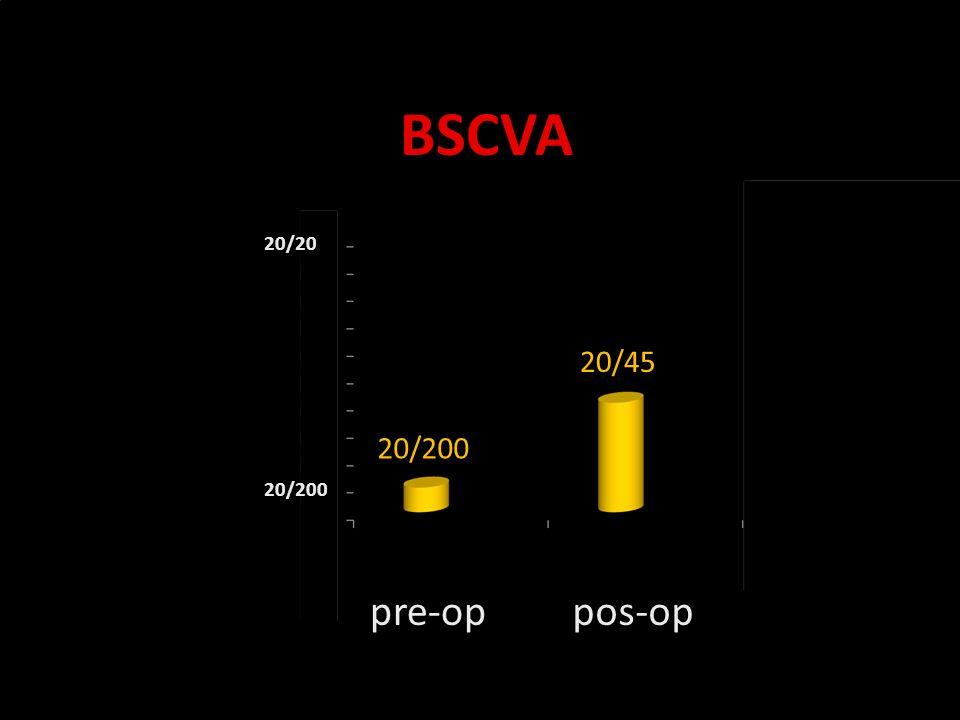 Novidades no olho seco BSCVA pre-oppos-op 20/45 20/200 20/20 20/200