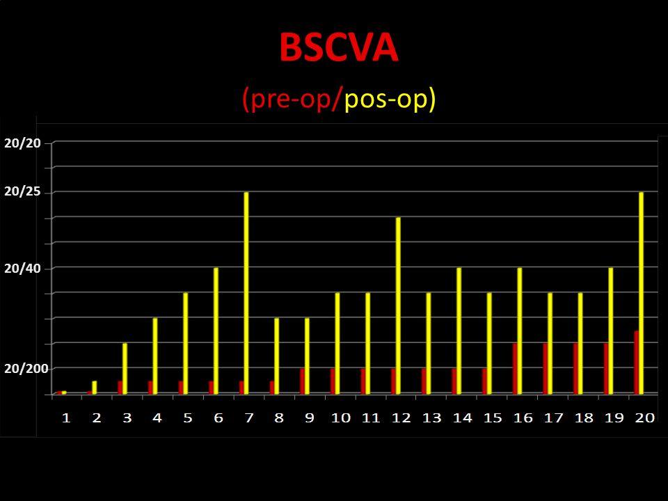 Novidades no olho seco BSCVA (pre-op/pos-op) 20/20 20/25 20/40 20/200