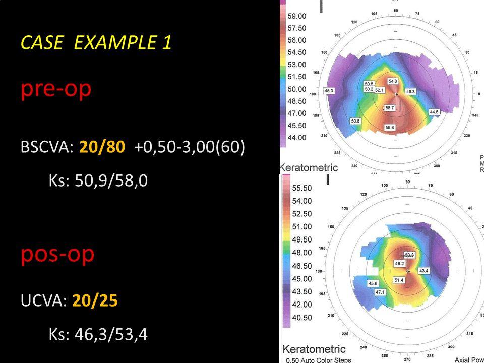 Novidades no olho seco CASE EXAMPLE 1 pre-op BSCVA: 20/80 +0,50-3,00(60) Ks: 50,9/58,0 pos-op UCVA: 20/25 Ks: 46,3/53,4