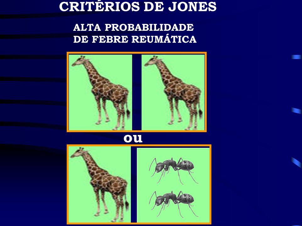 CRITÉRIOS DE JONES ALTA PROBABILIDADE DE FEBRE REUMÁTICA ou