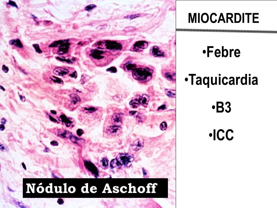 Nódulo de Aschoff MIOCARDITE Febre Taquicardia B3 ICC