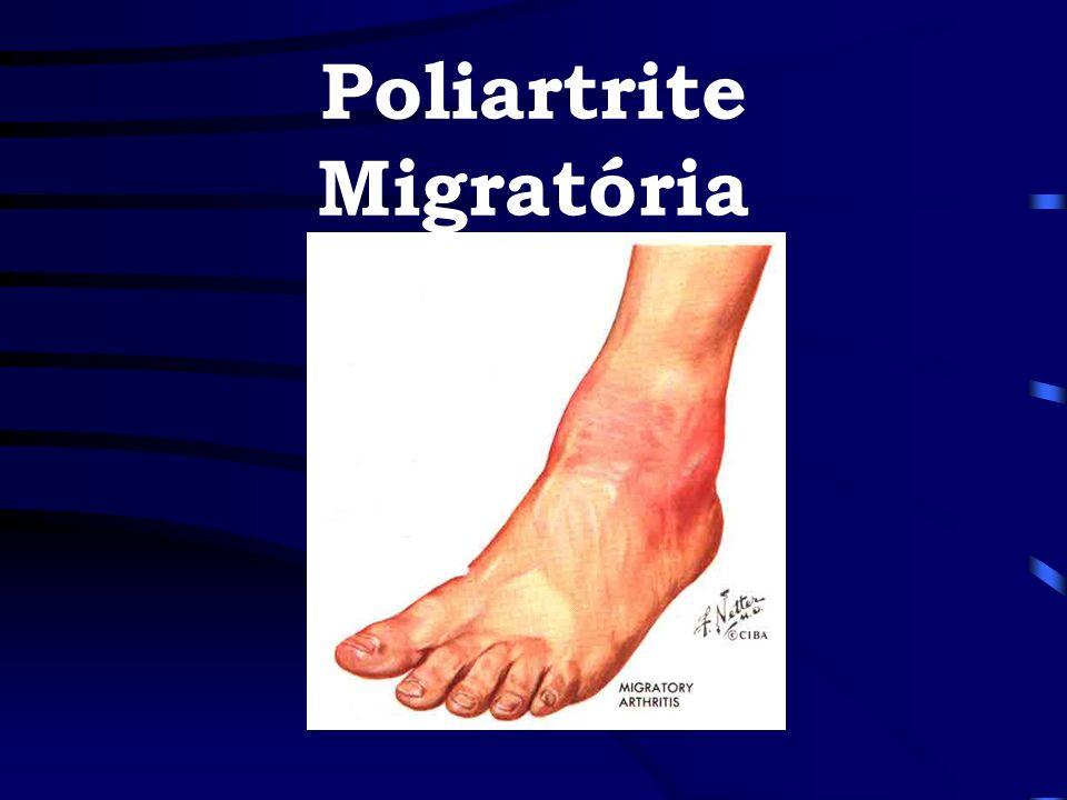 Poliartrite Migratória