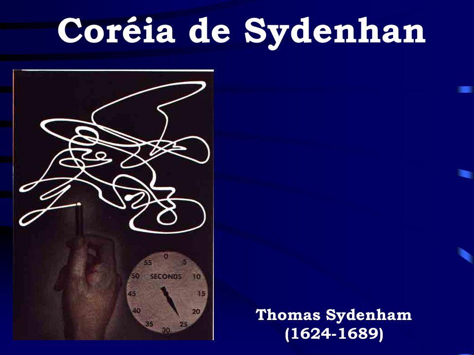 Coréia de Sydenhan Thomas Sydenham (1624-1689)