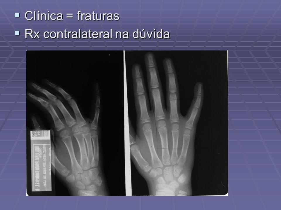 Clínica = fraturas Clínica = fraturas Rx contralateral na dúvida Rx contralateral na dúvida