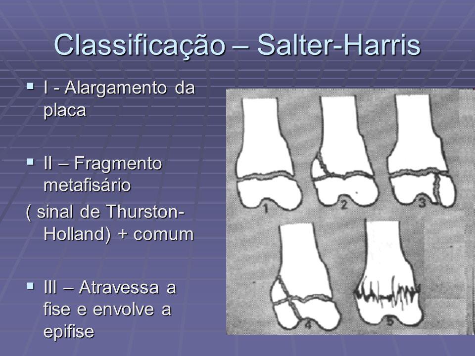 Classificação – Salter-Harris I - Alargamento da placa I - Alargamento da placa II – Fragmento metafisário II – Fragmento metafisário ( sinal de Thurs