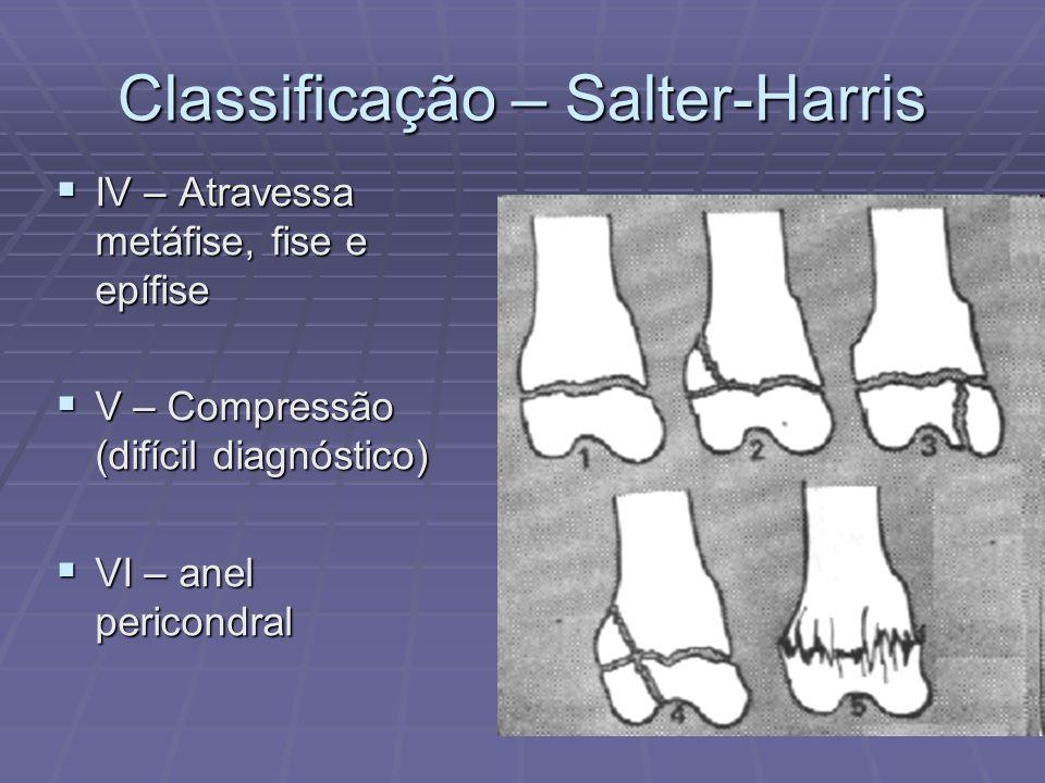 Classificação – Salter-Harris IV – Atravessa metáfise, fise e epífise IV – Atravessa metáfise, fise e epífise V – Compressão (difícil diagnóstico) V –