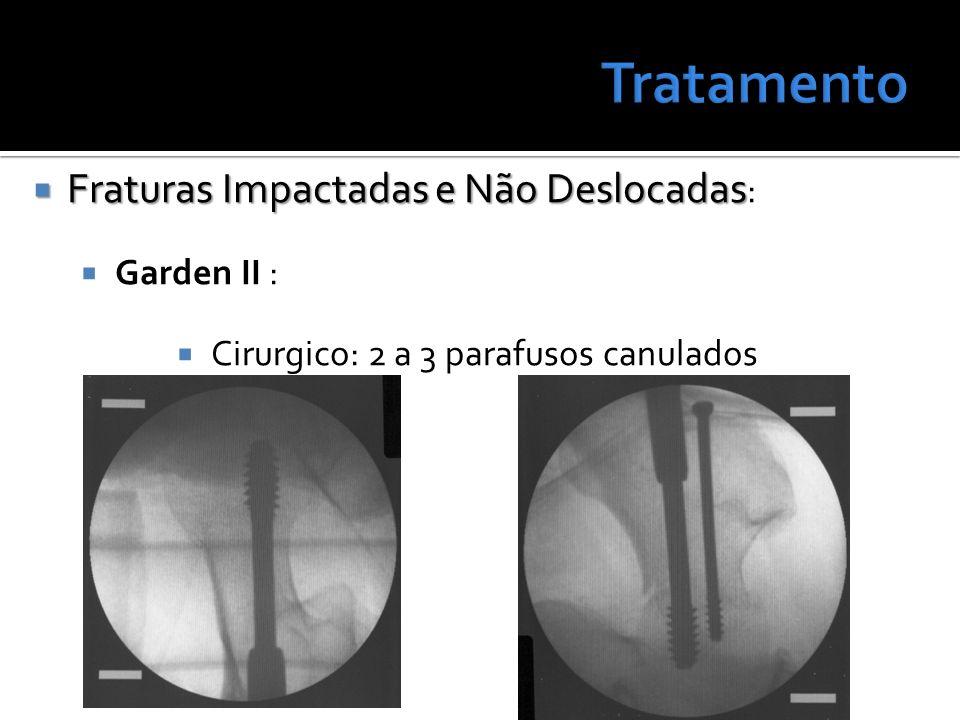 Fraturas Impactadas e Não Deslocadas Fraturas Impactadas e Não Deslocadas : Garden II : Cirurgico: 2 a 3 parafusos canulados