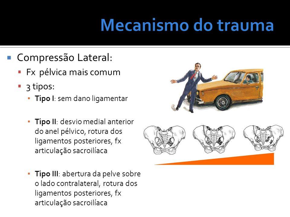 Compressão Lateral: Fx pélvica mais comum 3 tipos: Tipo I: sem dano ligamentar Tipo II: desvio medial anterior do anel pélvico, rotura dos ligamentos