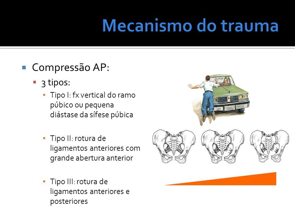 Compressão AP: 3 tipos: Tipo I: fx vertical do ramo púbico ou pequena diástase da sífese púbica Tipo II: rotura de ligamentos anteriores com grande ab