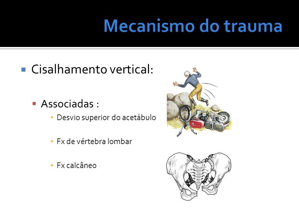 Cisalhamento vertical: Associadas : Desvio superior do acetábulo Fx de vértebra lombar Fx calcâneo
