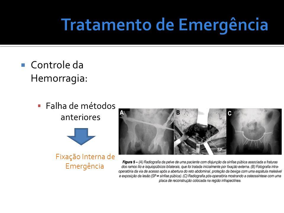 Controle da Hemorragia: Falha de métodos anteriores Fixação Interna de Emergência