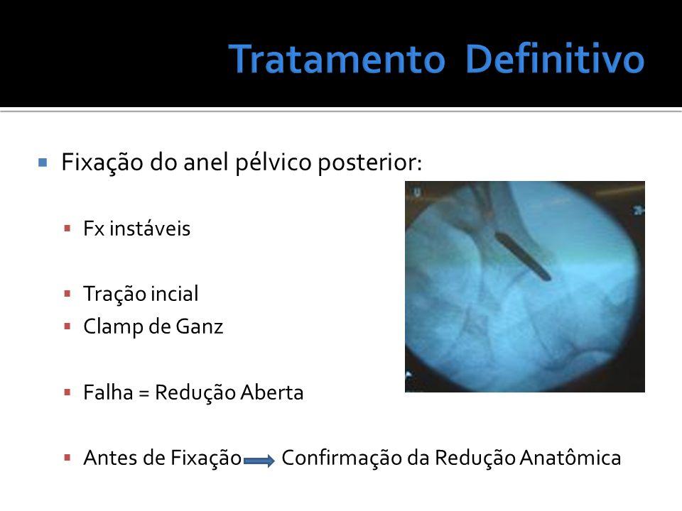 Fixação do anel pélvico posterior: Fx instáveis Tração incial Clamp de Ganz Falha = Redução Aberta Antes de Fixação Confirmação da Redução Anatômica