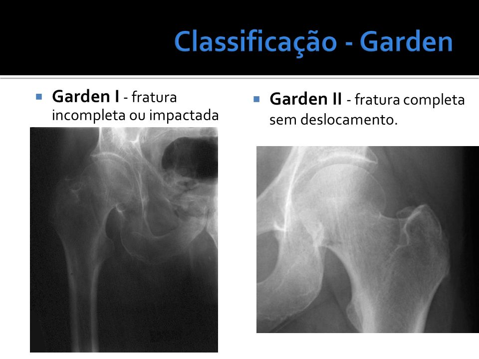 Garden I - fratura incompleta ou impactada Garden II - fratura completa sem deslocamento.