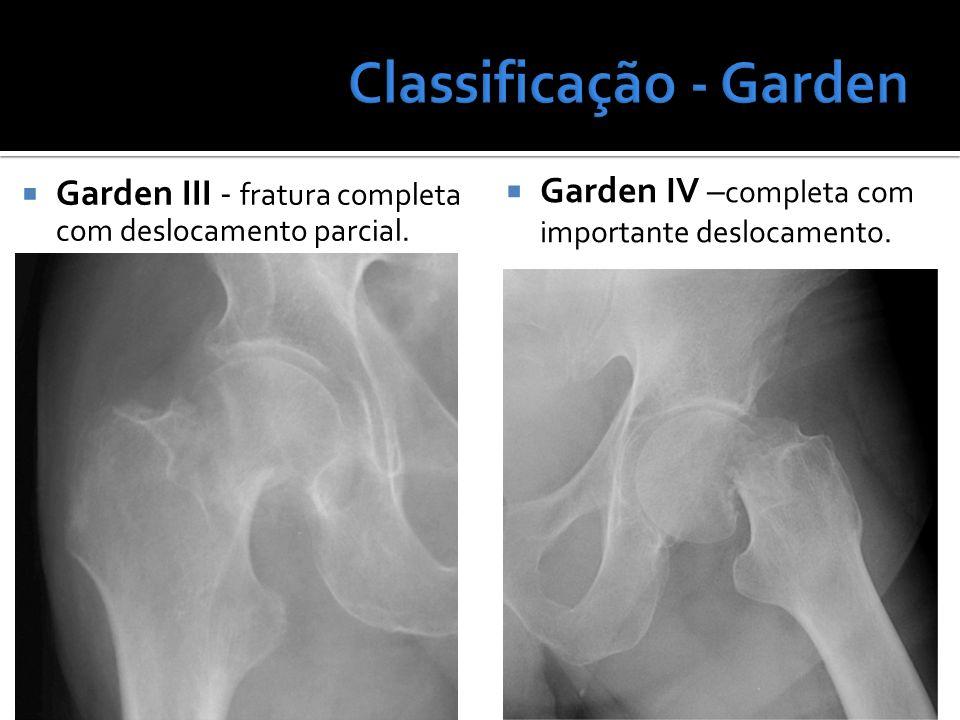 Garden III - fratura completa com deslocamento parcial. Garden IV – completa com importante deslocamento.