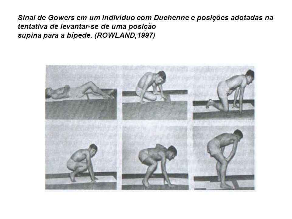 Sinal de Gowers em um indivíduo com Duchenne e posições adotadas na tentativa de levantar-se de uma posição supina para a bípede. (ROWLAND,1997)