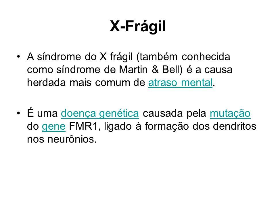 X-Frágil Síndrome do X-Frágil causada por uma mutação dinâmica que provoca uma enorme expansão de bases CGG do gene FMR1 (Xq – braço longo do cromossomo X) - vai de 60 a milhares de repetições.