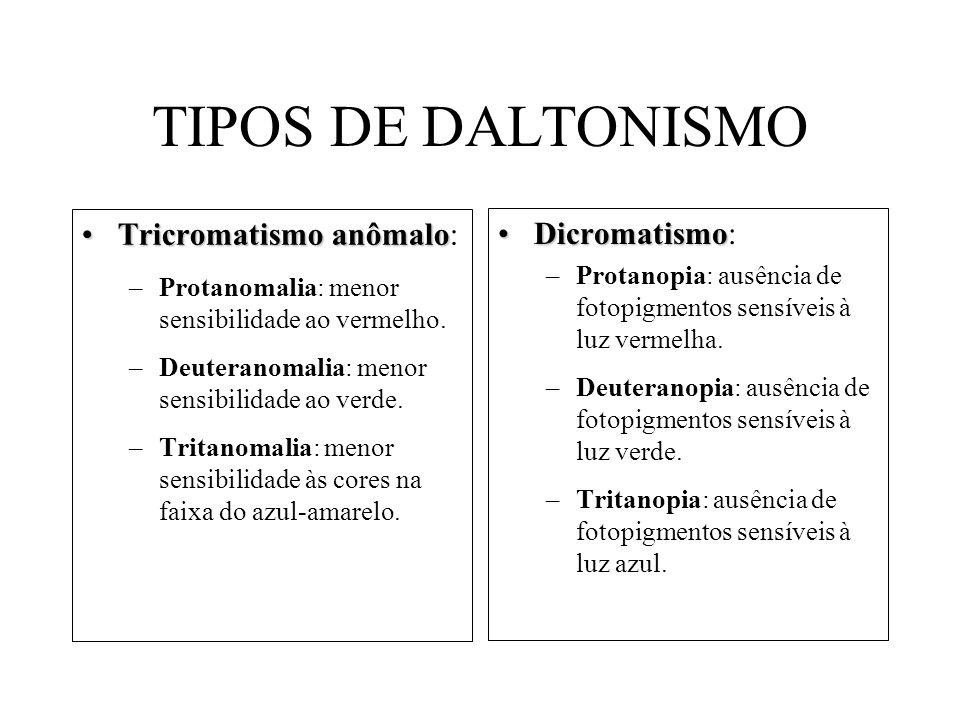 TIPOS DE DALTONISMO Tricromatismo anômaloTricromatismo anômalo: –Protanomalia: menor sensibilidade ao vermelho. –Deuteranomalia: menor sensibilidade a