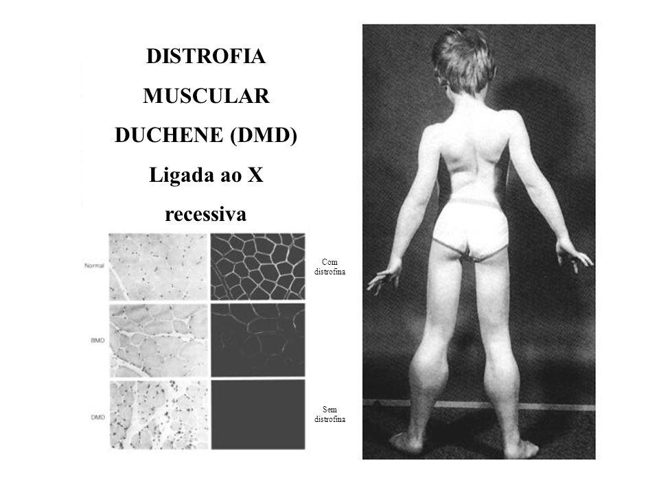 DISTROFIA MUSCULAR DUCHENE (DMD) Ligada ao X recessiva Com distrofina Sem distrofina
