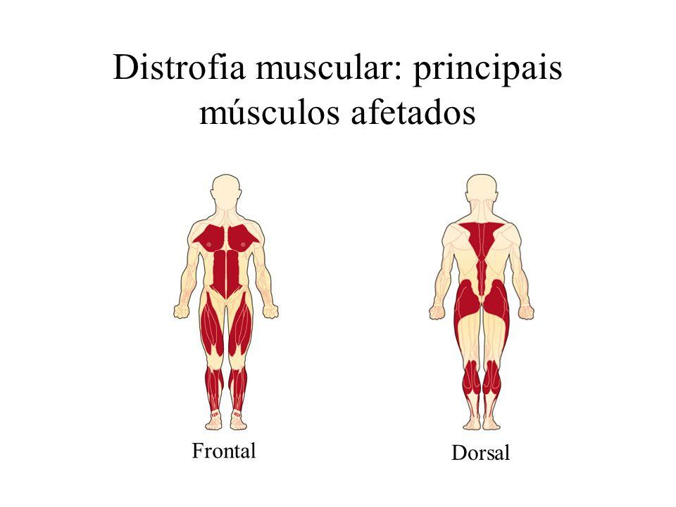 Distrofia muscular: principais músculos afetados Frontal Dorsal
