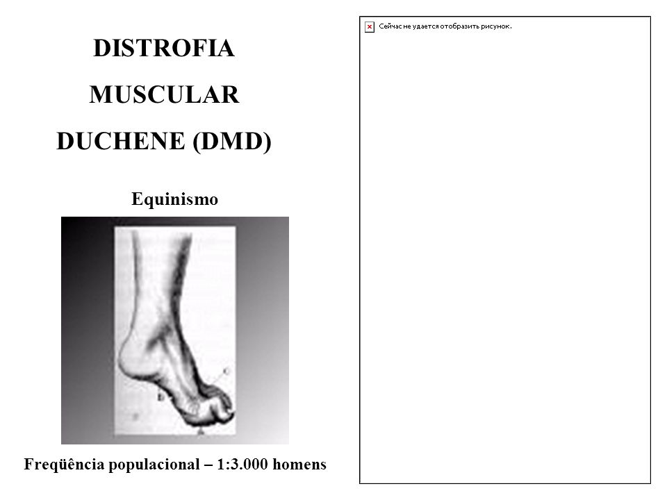 Equinismo DISTROFIA MUSCULAR DUCHENE (DMD) Freqüência populacional – 1:3.000 homens