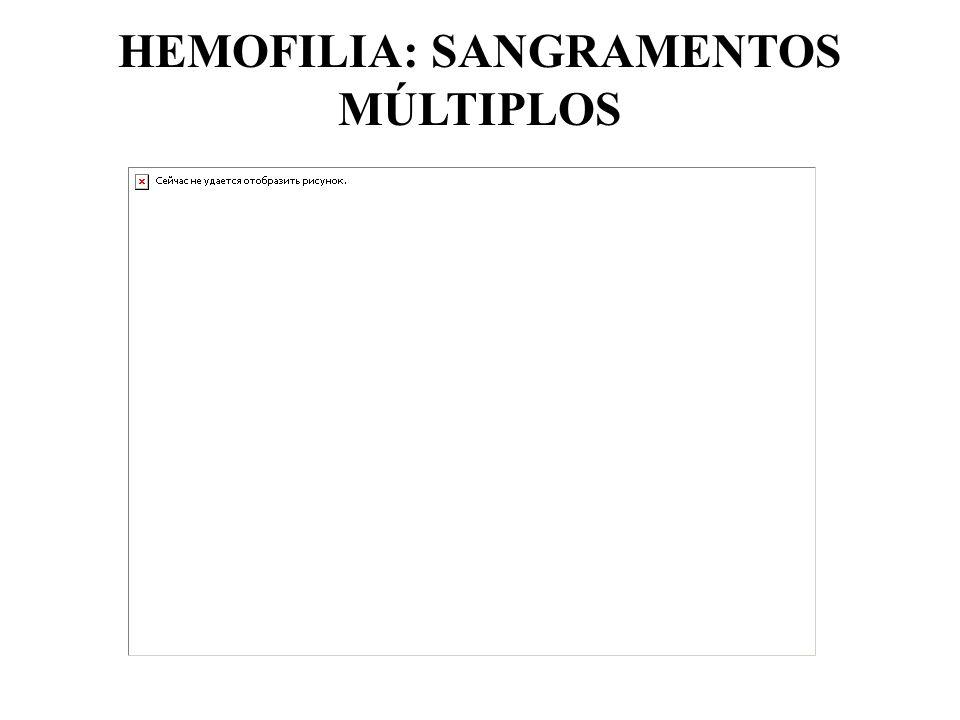 HEMOFILIA: SANGRAMENTOS MÚLTIPLOS
