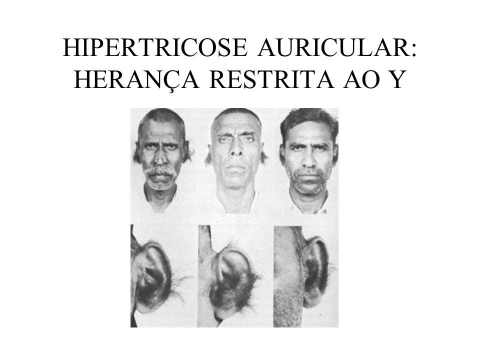 HIPERTRICOSE AURICULAR: HERANÇA RESTRITA AO Y